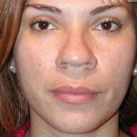 تصاویر جراحی بینی گوشتی