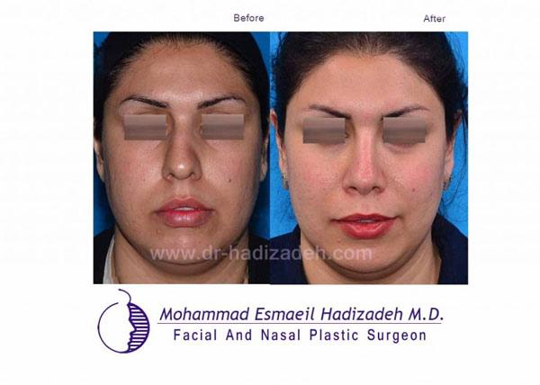 جراحی-بینی-کج-10-نمای-1
