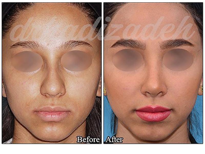 nose surgery 5