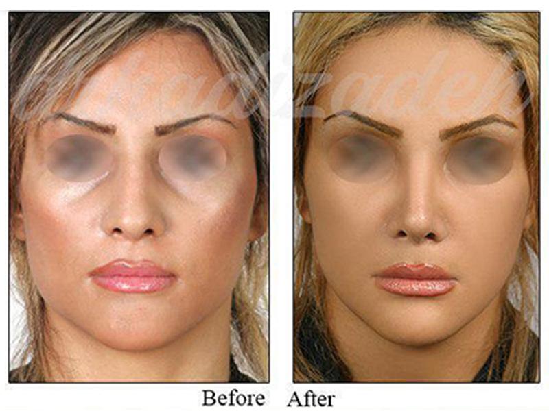 nose surgery 3
