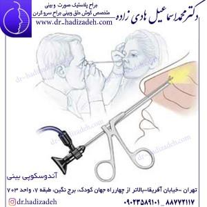 آندوسکوپی بینی