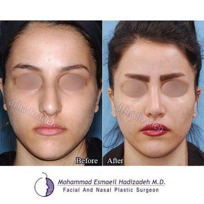 جراحی-بینی-6-نمای-1