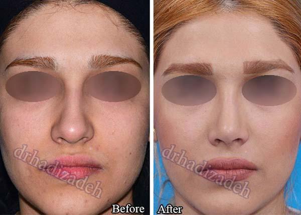 nose surgery 7