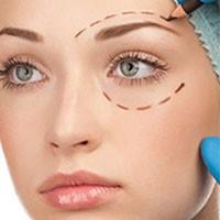 تصاویر جراحی زیبایی پلک