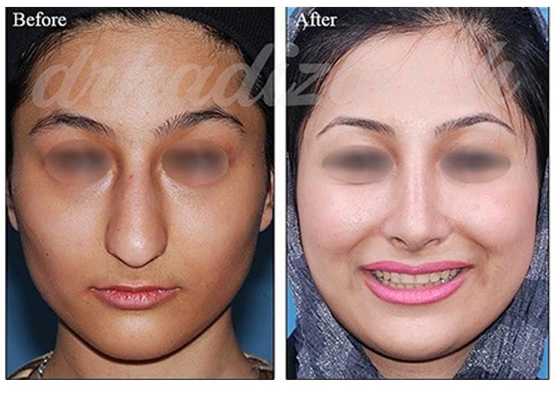 nose surgery 6