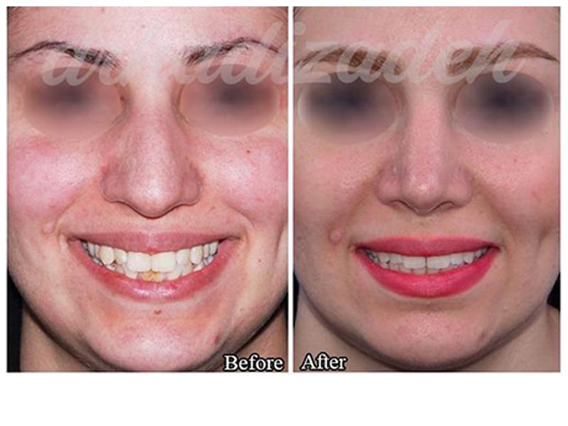 nose surgery 2