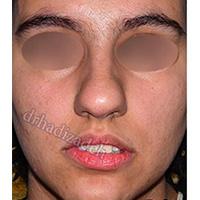 نمونه-های-جراحی-بینی-گوشتی-دکتر-هادیزاده