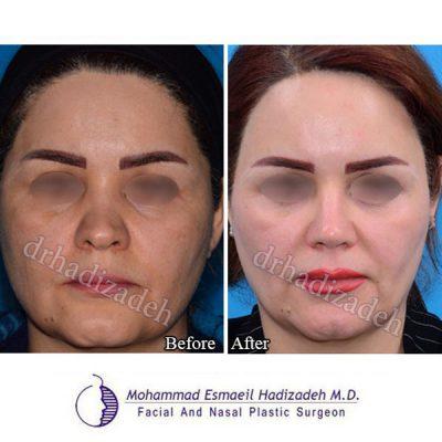 جراحی بینی 2 نمای 2