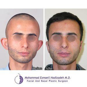 جراحی-زیبایی-گوش-2-نمای-1